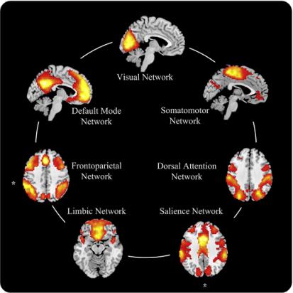 Neuroimage期刊文章